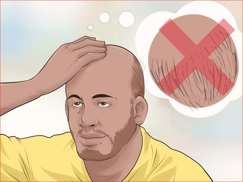How To Get Rid Of Bald Spots For a Teenager