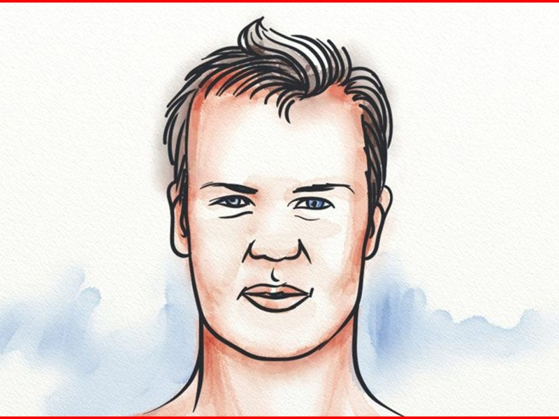 How To Prevent Hair Loss For Teenage Guys