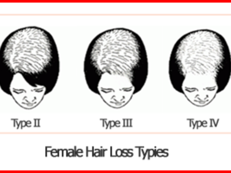 Hair Fall Causes In Female